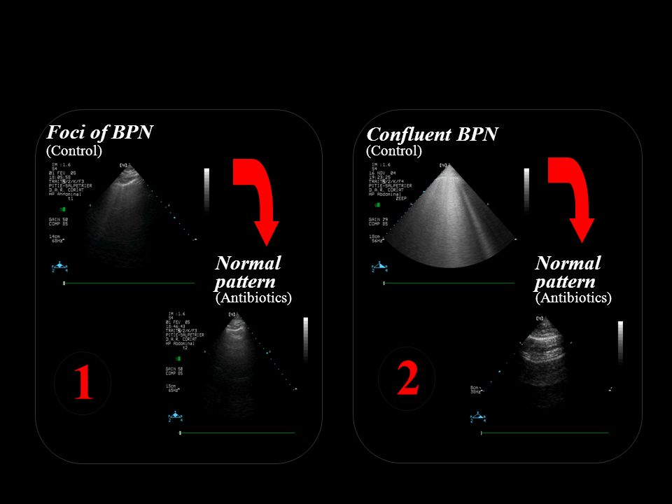 2 1 Ultrasound score is calculated for each compartment Foci of BPN
