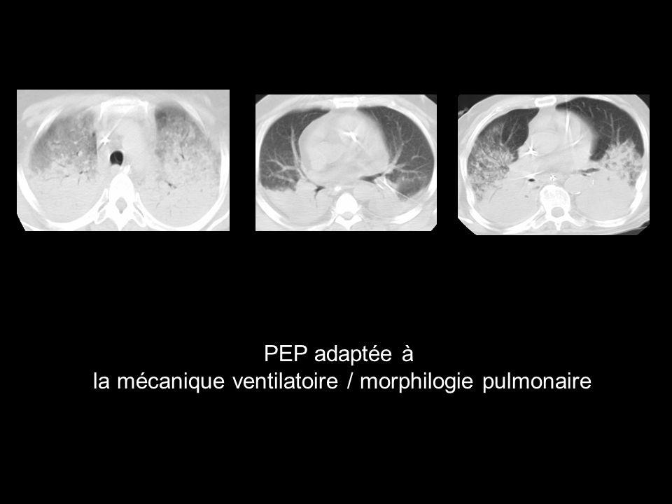 la mécanique ventilatoire / morphilogie pulmonaire
