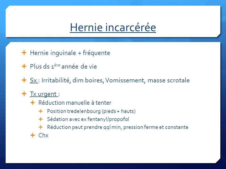Hernie incarcérée Hernie inguinale + fréquente