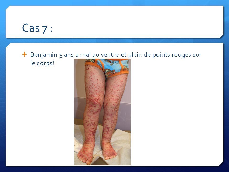 Cas 7 : Benjamin 5 ans a mal au ventre et plein de points rouges sur le corps!