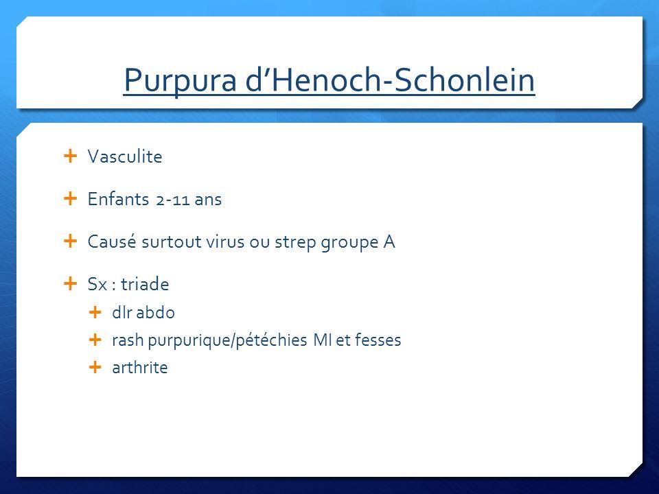 Purpura d'Henoch-Schonlein