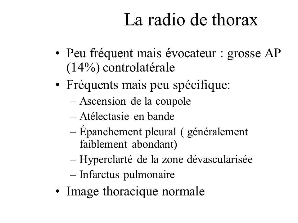 La radio de thorax Peu fréquent mais évocateur : grosse AP (14%) controlatérale. Fréquents mais peu spécifique: