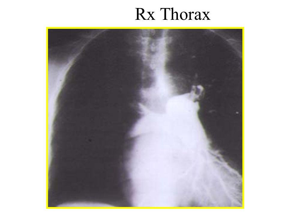 Rx Thorax