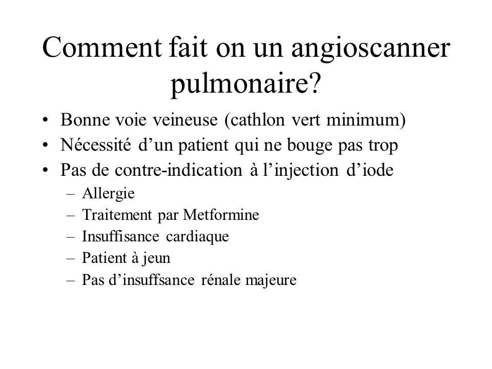 Comment fait on un angioscanner pulmonaire