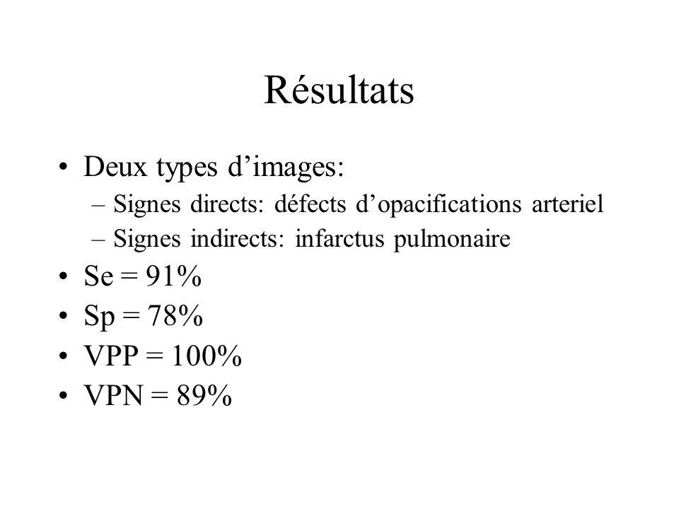 Résultats Deux types d'images: Se = 91% Sp = 78% VPP = 100% VPN = 89%