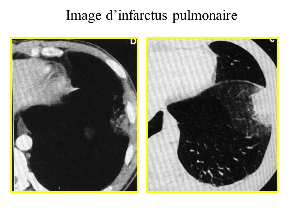 Image d'infarctus pulmonaire