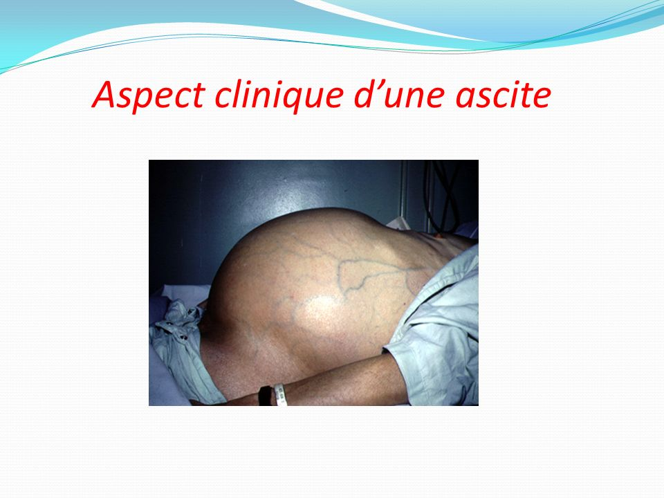 Aspect clinique d'une ascite