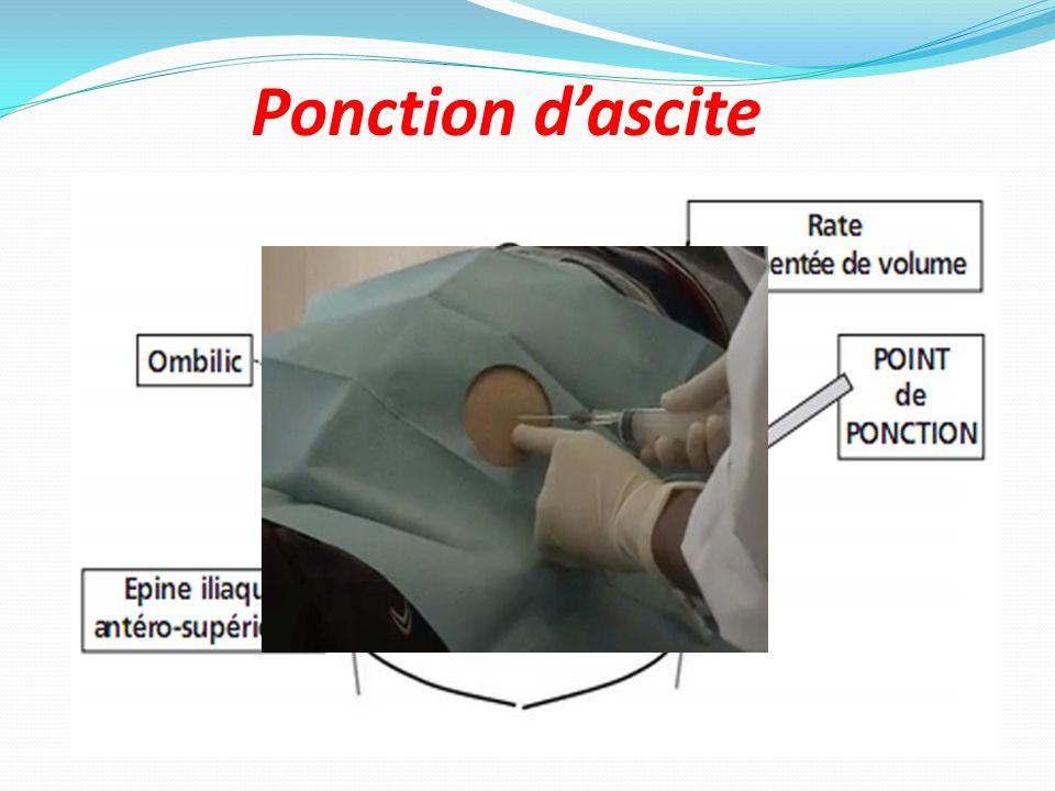 Ponction d'ascite