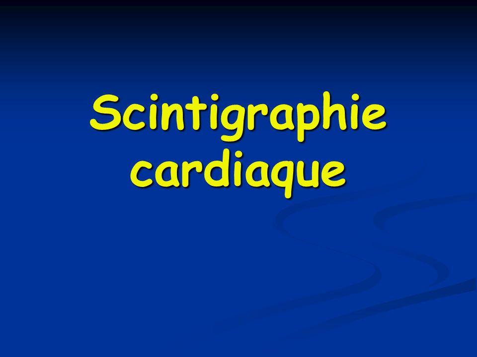 Scintigraphie cardiaque