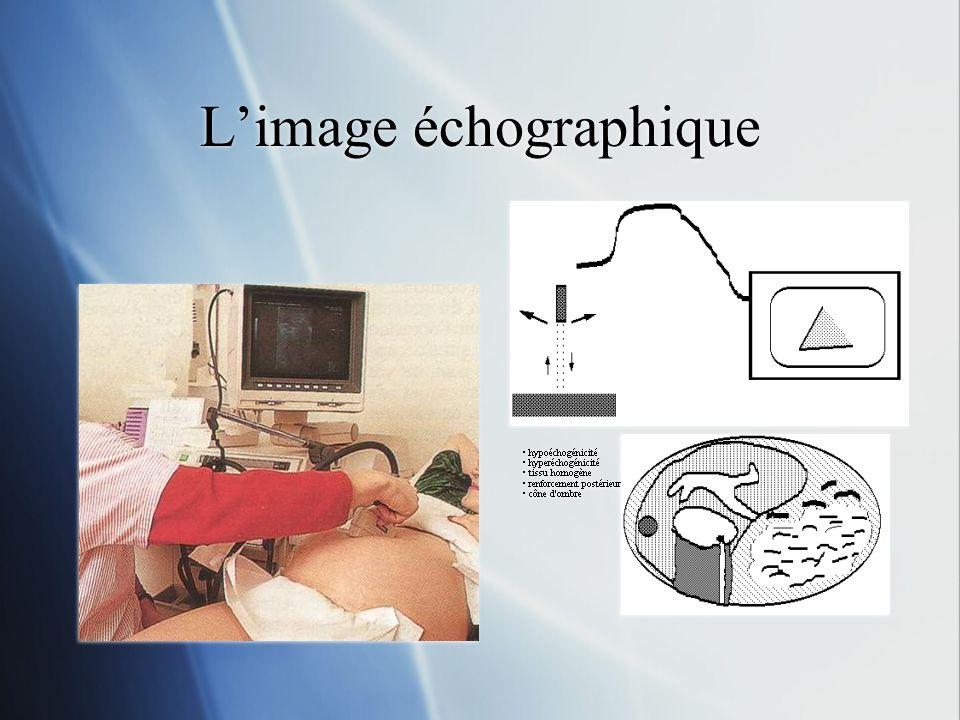 L'image échographique