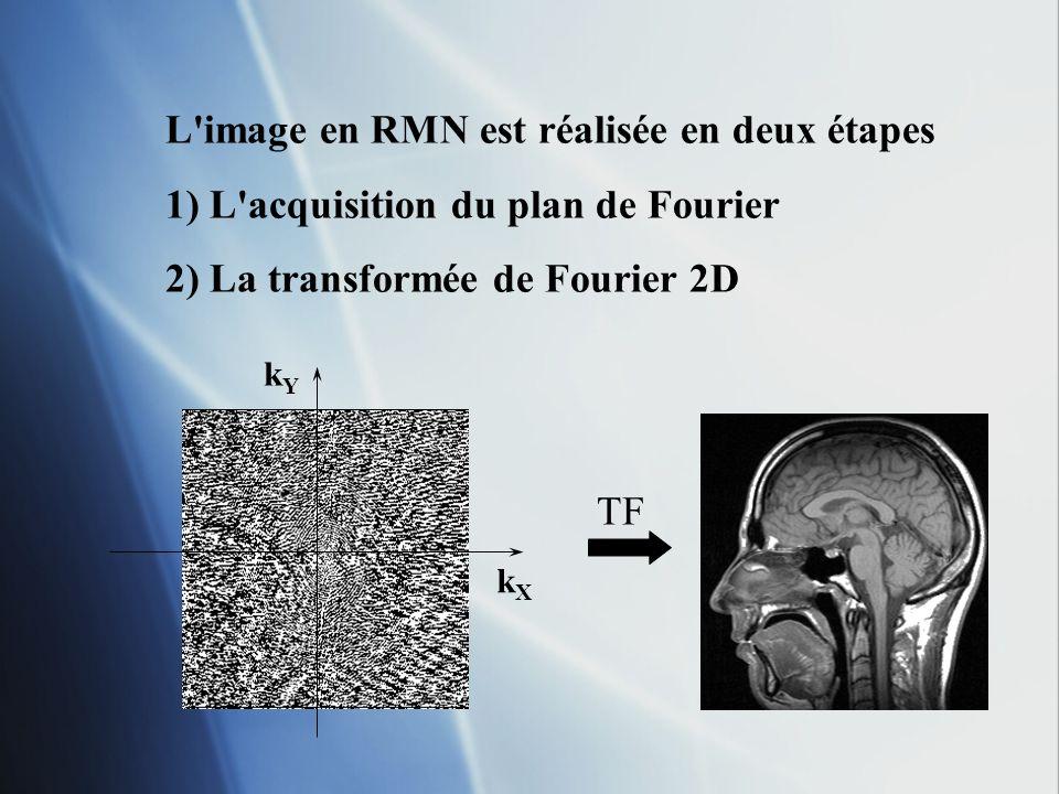 L image en RMN est réalisée en deux étapes