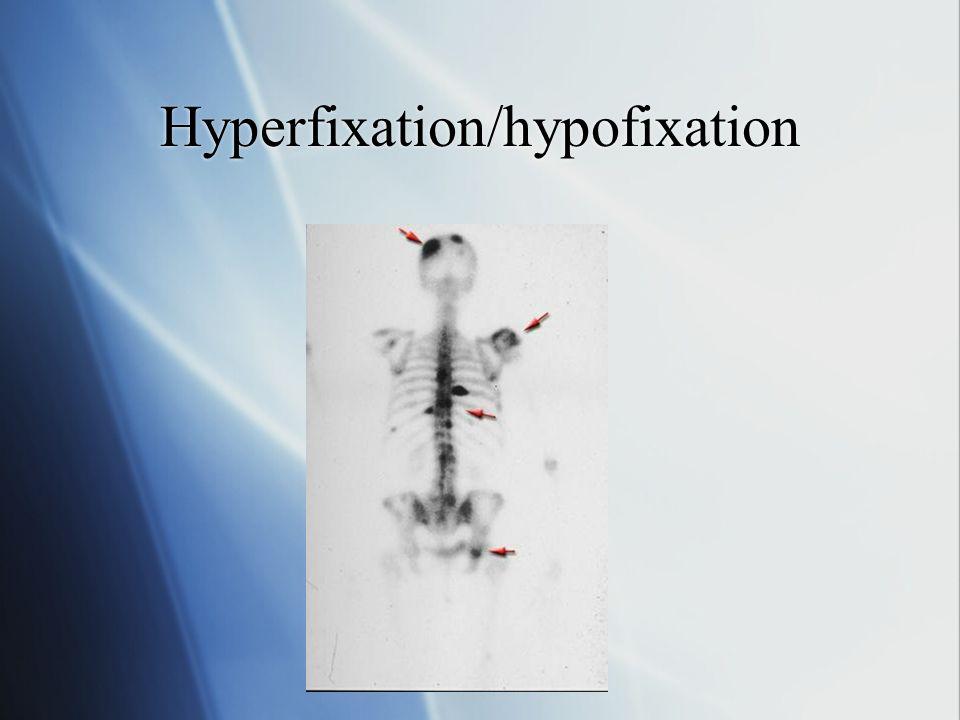 Hyperfixation/hypofixation
