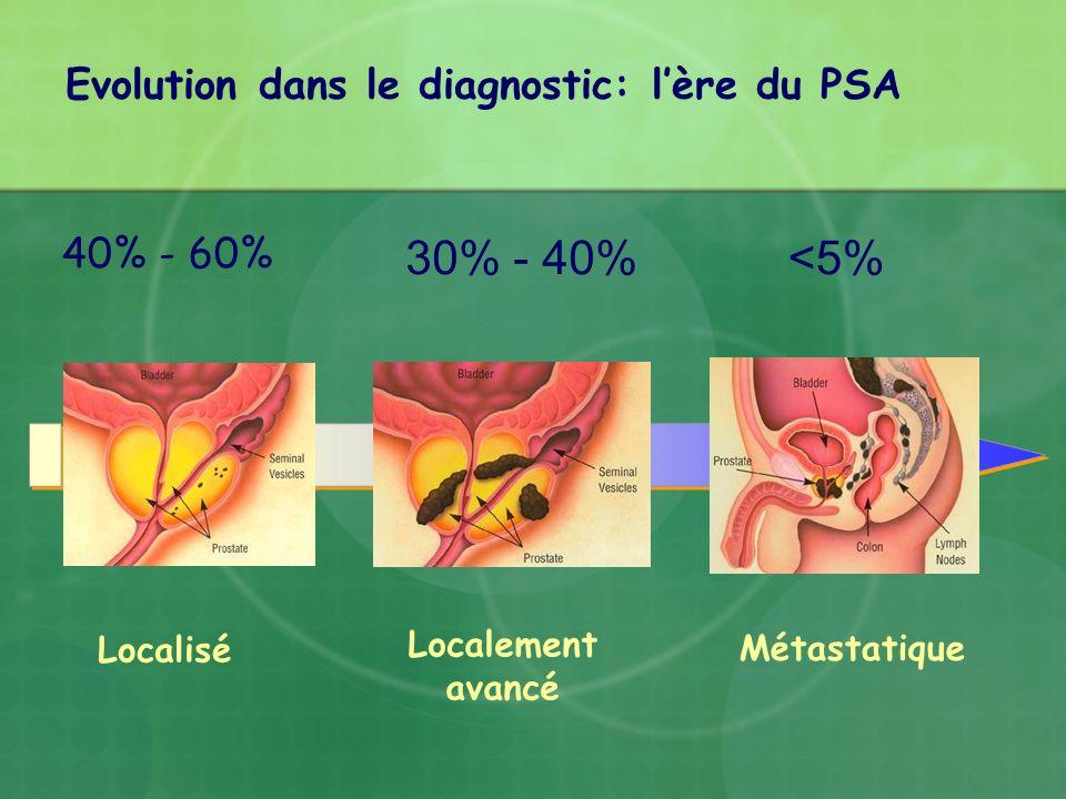Evolution dans le diagnostic: l'ère du PSA