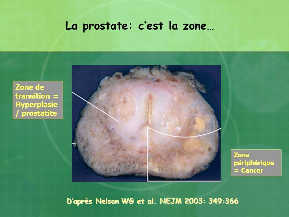 D'après Nelson WG et al. NEJM 2003: 349:366