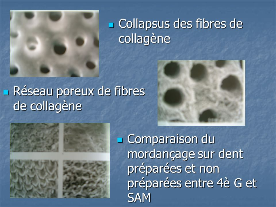 Collapsus des fibres de collagène
