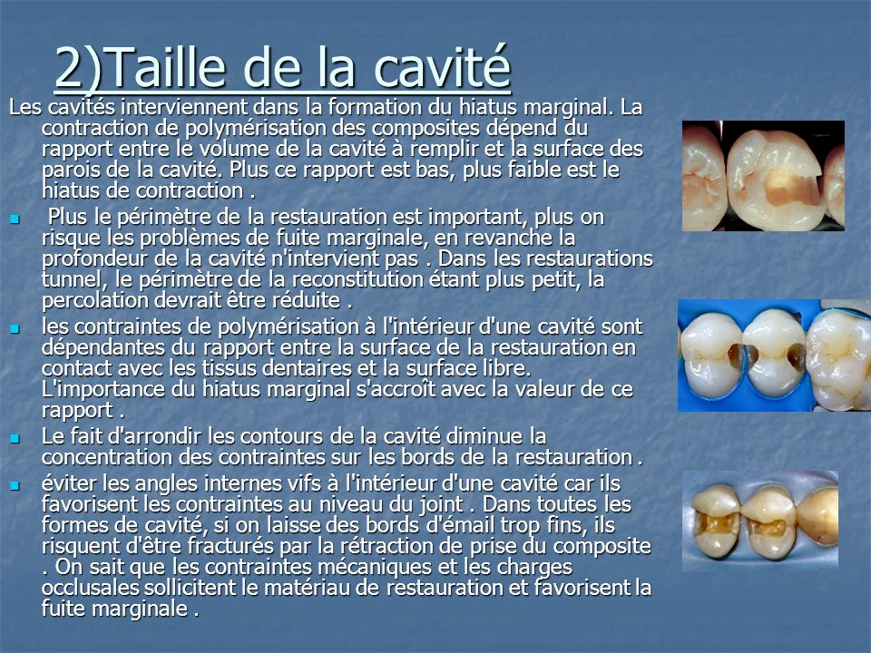 2)Taille de la cavité