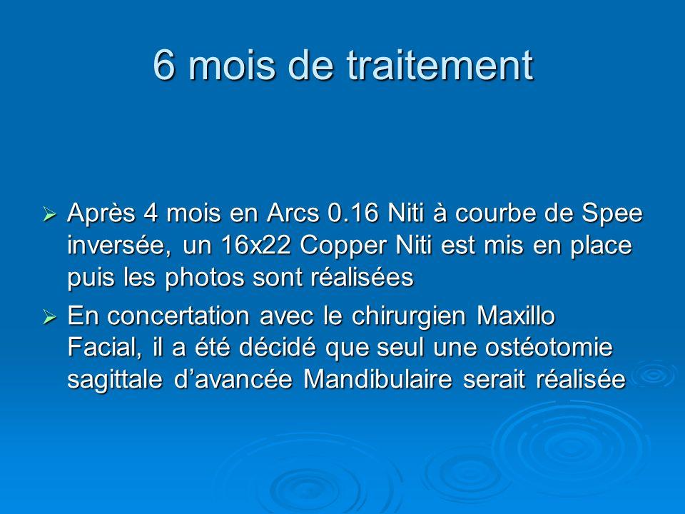 6 mois de traitement Après 4 mois en Arcs 0.16 Niti à courbe de Spee inversée, un 16x22 Copper Niti est mis en place puis les photos sont réalisées.