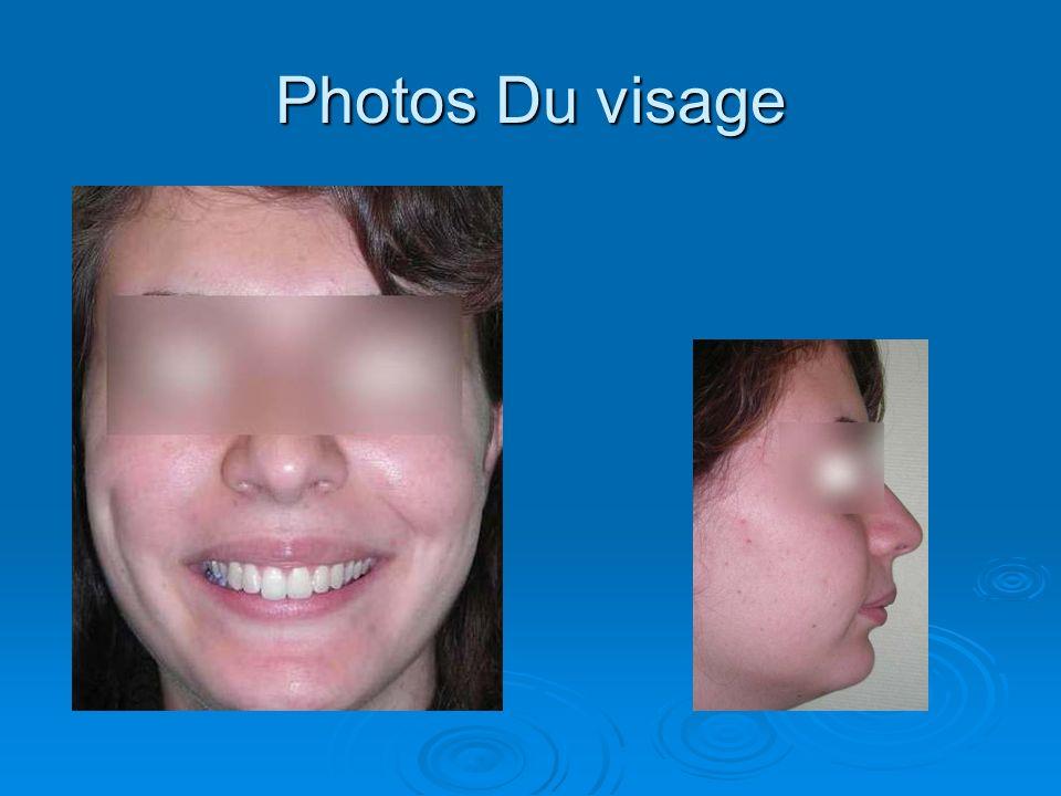 Photos Du visage