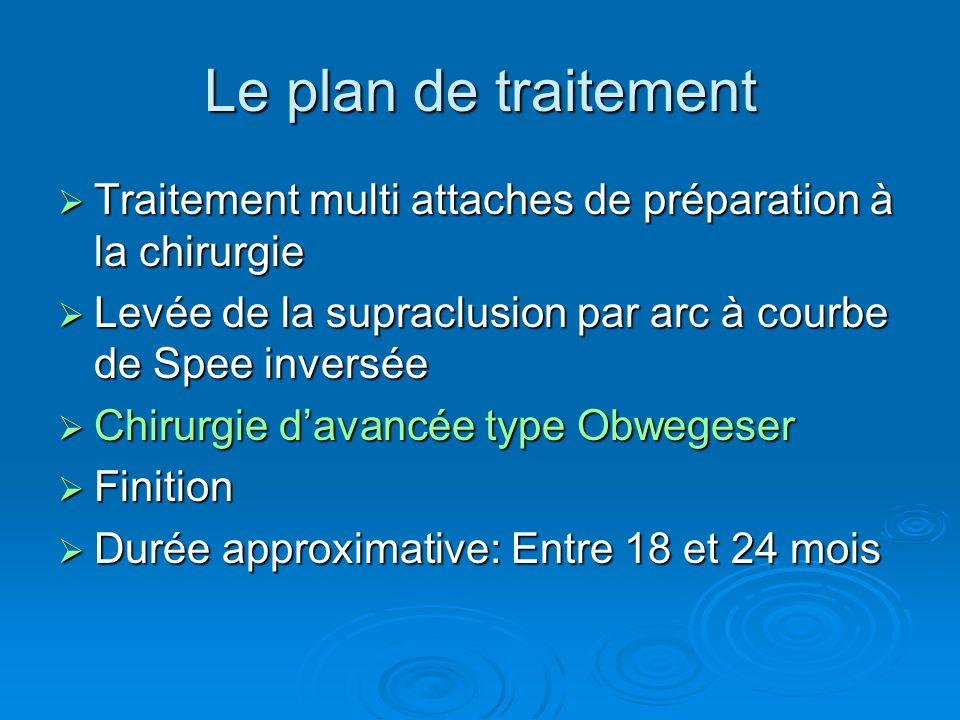 Le plan de traitement Traitement multi attaches de préparation à la chirurgie. Levée de la supraclusion par arc à courbe de Spee inversée.