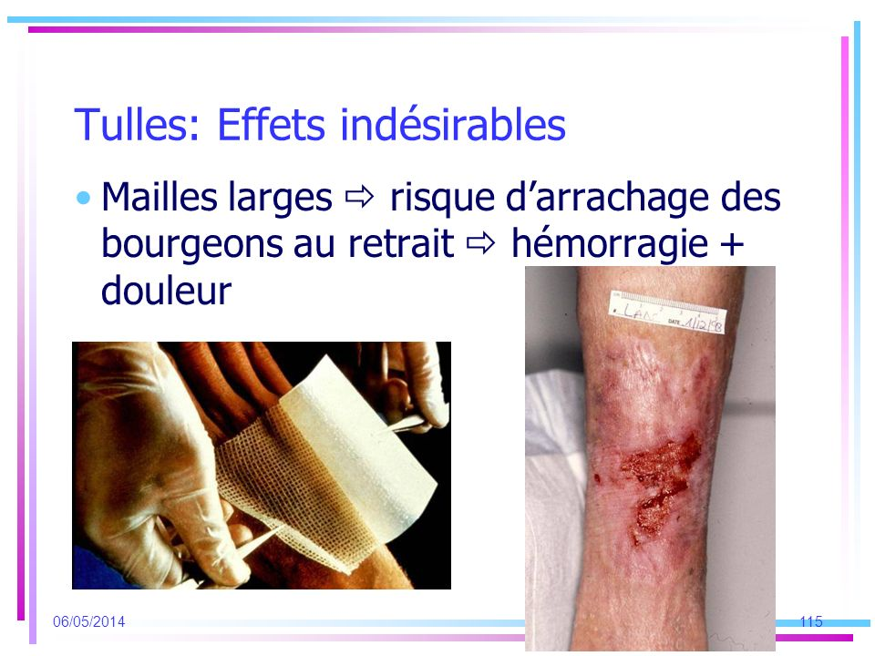 Tulles: Effets indésirables