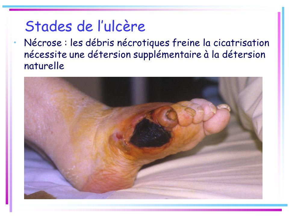 Stades de l'ulcère Nécrose : les débris nécrotiques freine la cicatrisation nécessite une détersion supplémentaire à la détersion naturelle.