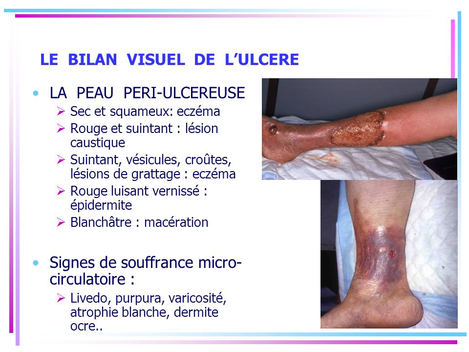LE BILAN VISUEL DE L'ULCERE