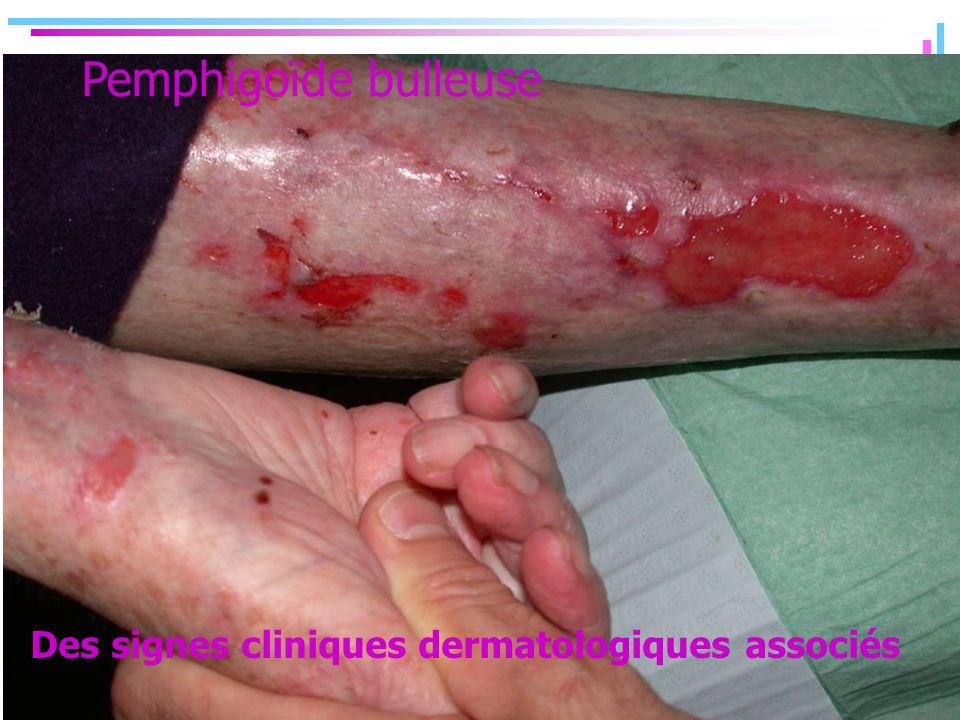 Pemphigoïde bulleuse Des signes cliniques dermatologiques associés