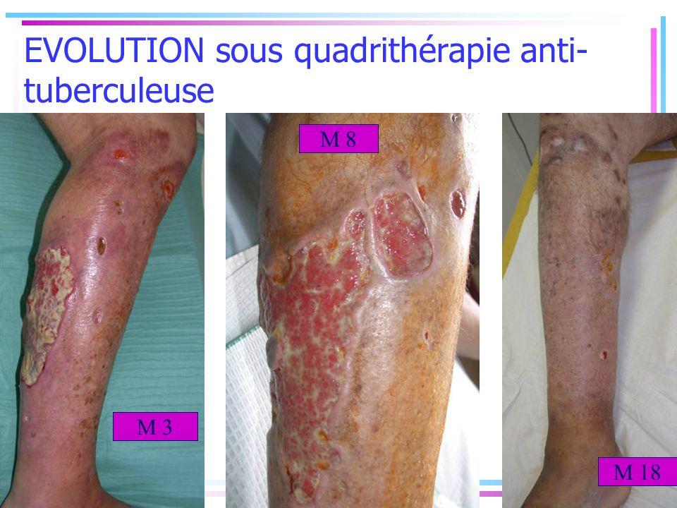 EVOLUTION sous quadrithérapie anti-tuberculeuse