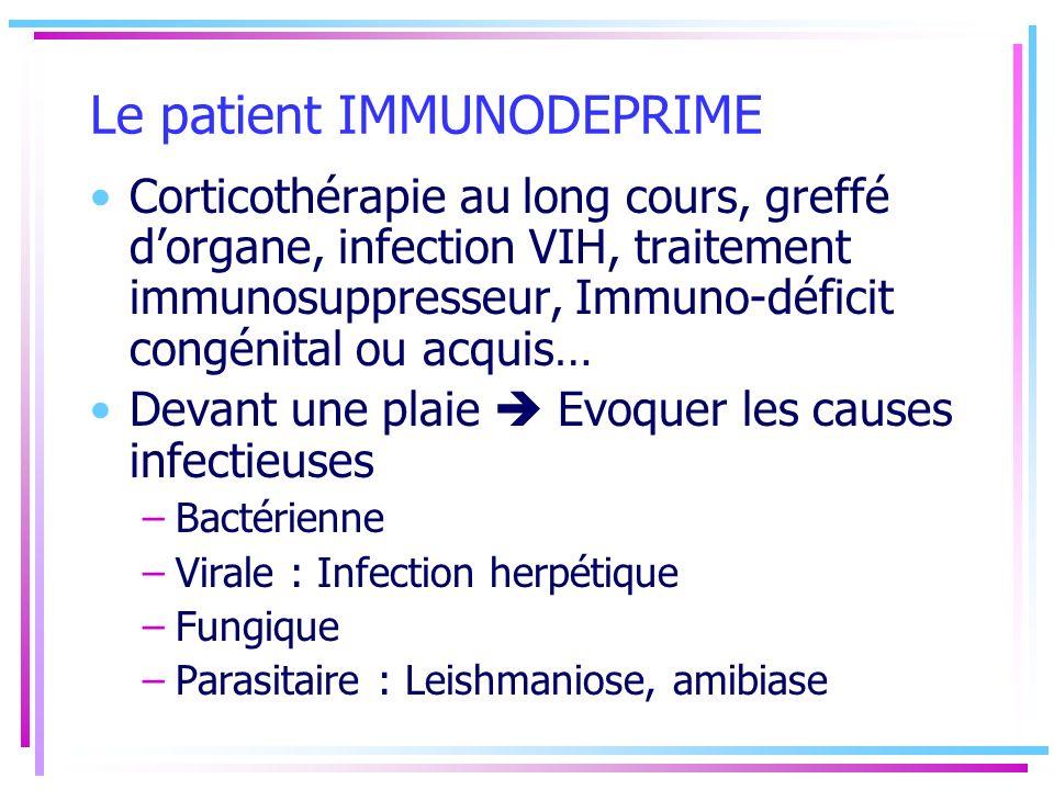 Le patient IMMUNODEPRIME