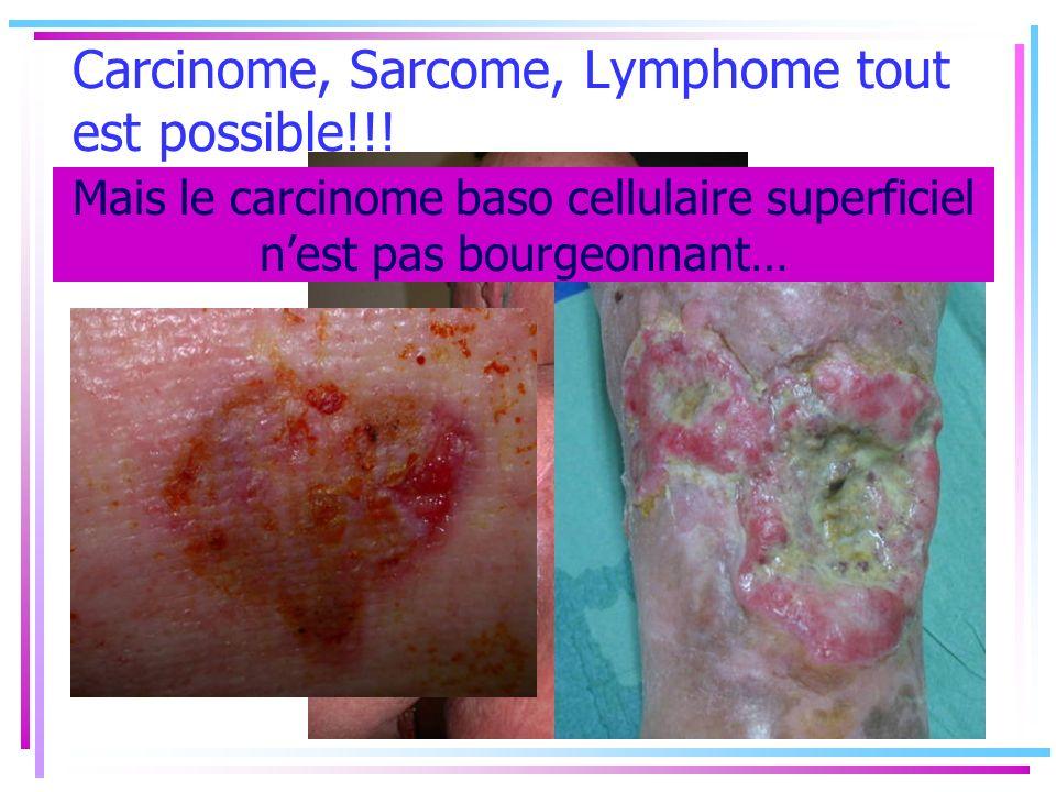 Carcinome, Sarcome, Lymphome tout est possible!!!