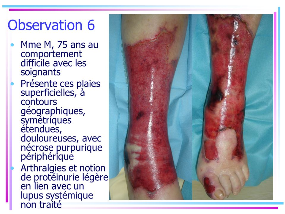 Observation 6 Mme M, 75 ans au comportement difficile avec les soignants.
