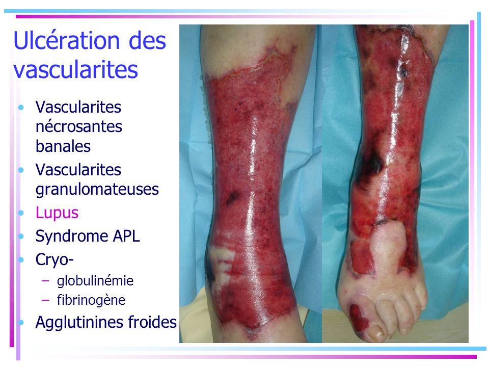 Ulcération des vascularites