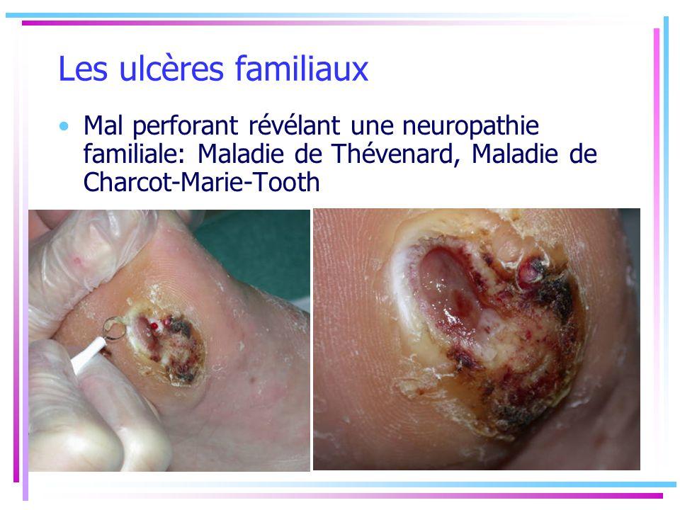 Les ulcères familiaux Mal perforant révélant une neuropathie familiale: Maladie de Thévenard, Maladie de Charcot-Marie-Tooth.