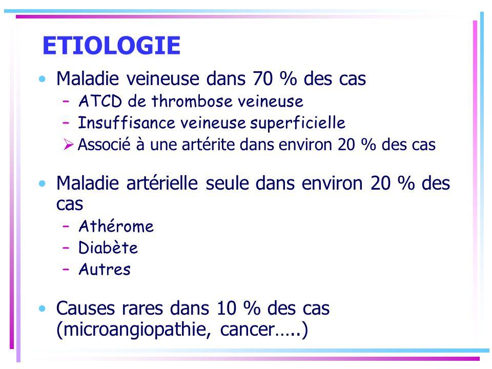 ETIOLOGIE Maladie veineuse dans 70 % des cas