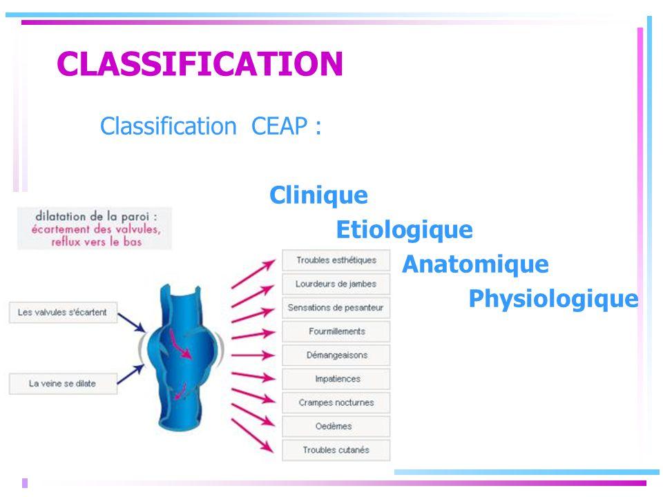 CLASSIFICATION Classification CEAP : Clinique Etiologique Anatomique