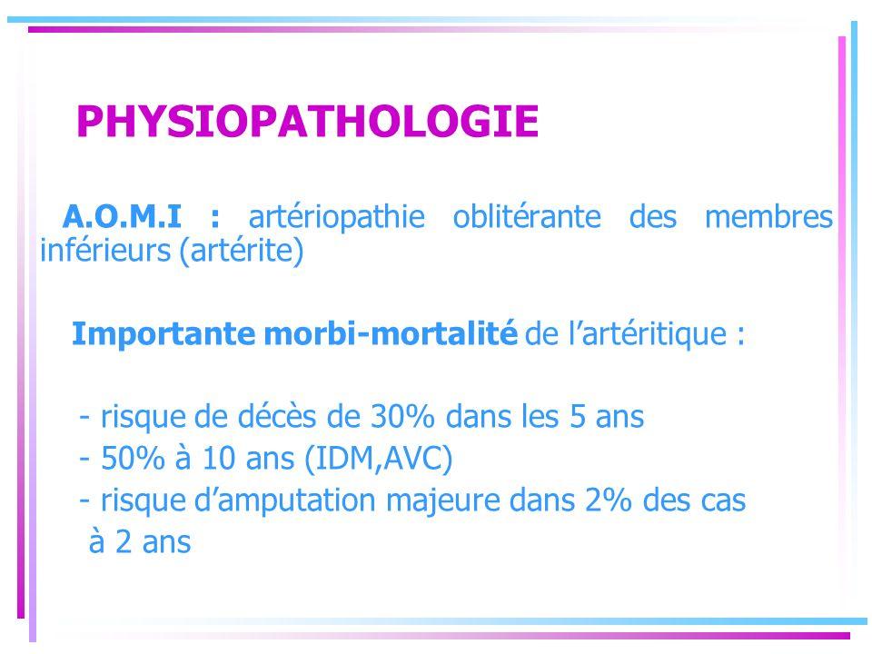 PHYSIOPATHOLOGIE A.O.M.I : artériopathie oblitérante des membres inférieurs (artérite) Importante morbi-mortalité de l'artéritique :