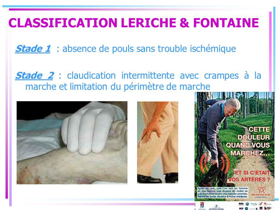 CLASSIFICATION LERICHE & FONTAINE