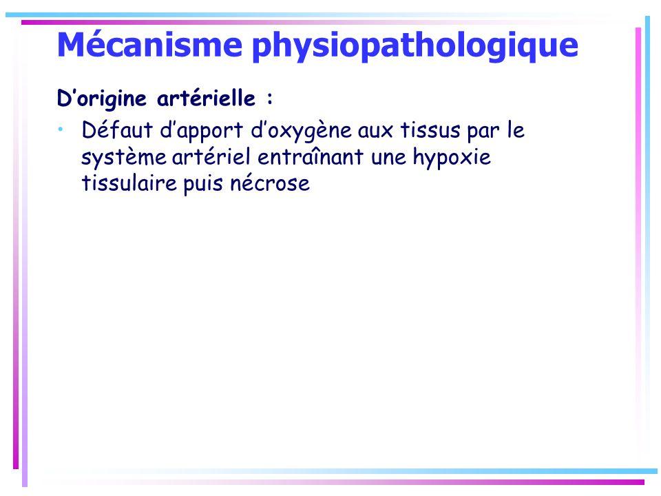 Mécanisme physiopathologique