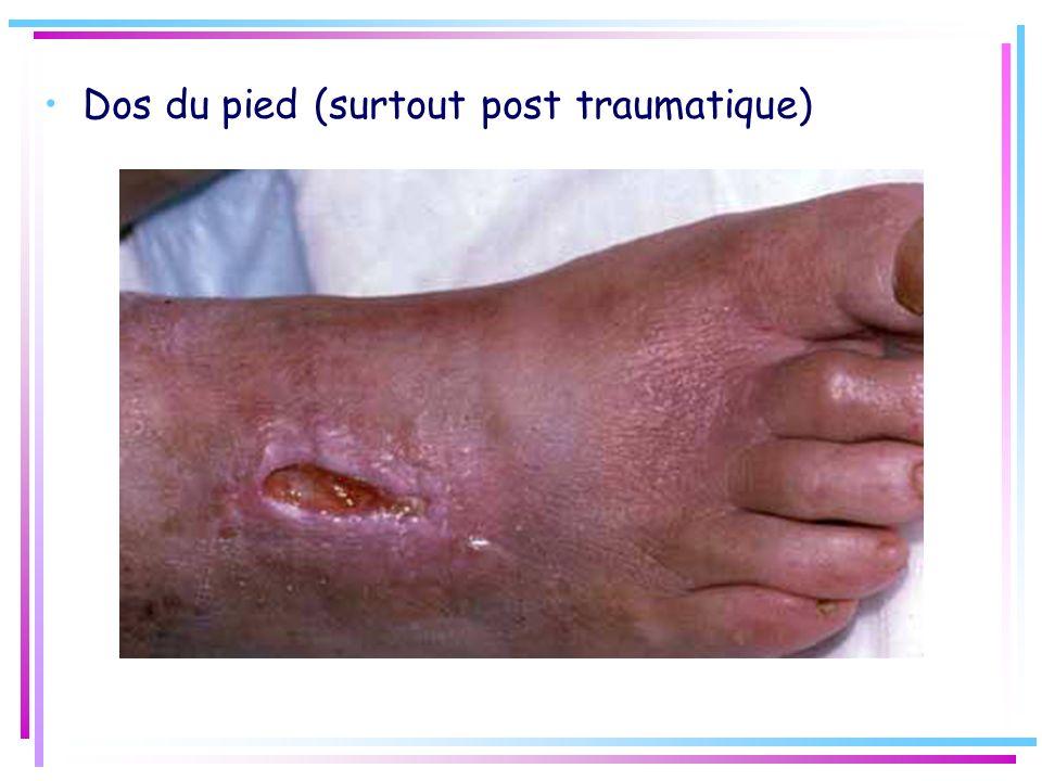 Dos du pied (surtout post traumatique)