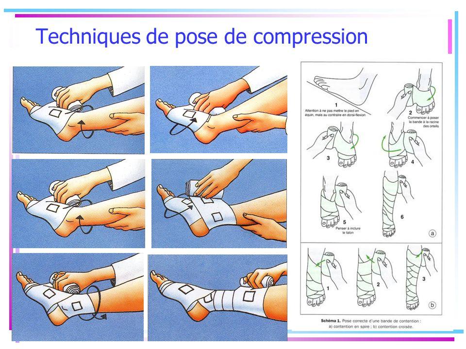 Techniques de pose de compression