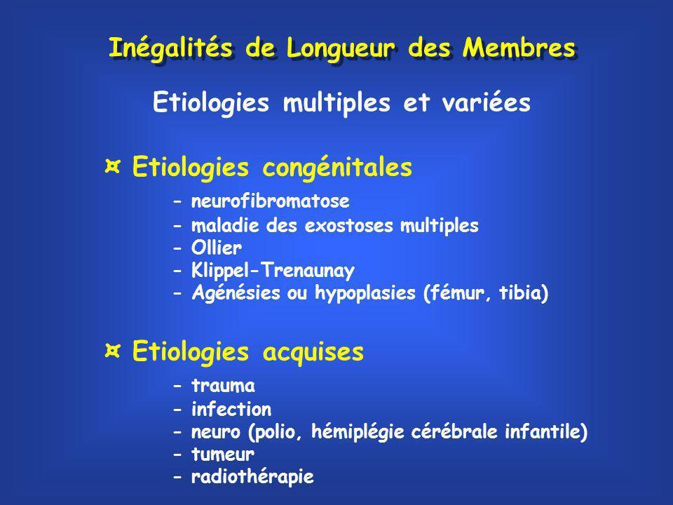 Inégalités de Longueur des Membres