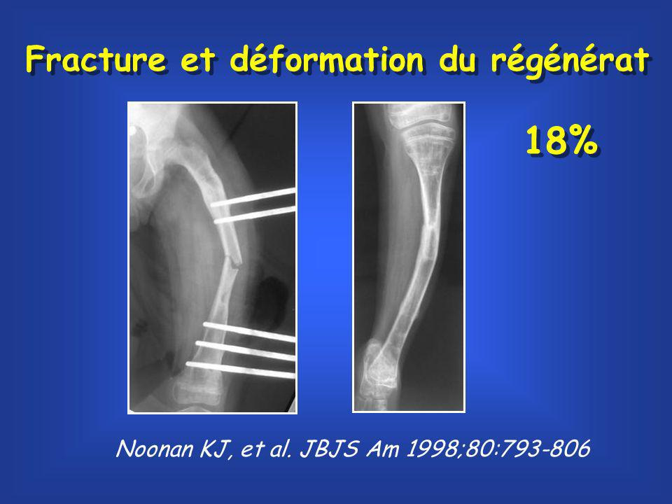 Noonan KJ, et al. JBJS Am 1998;80:793-806