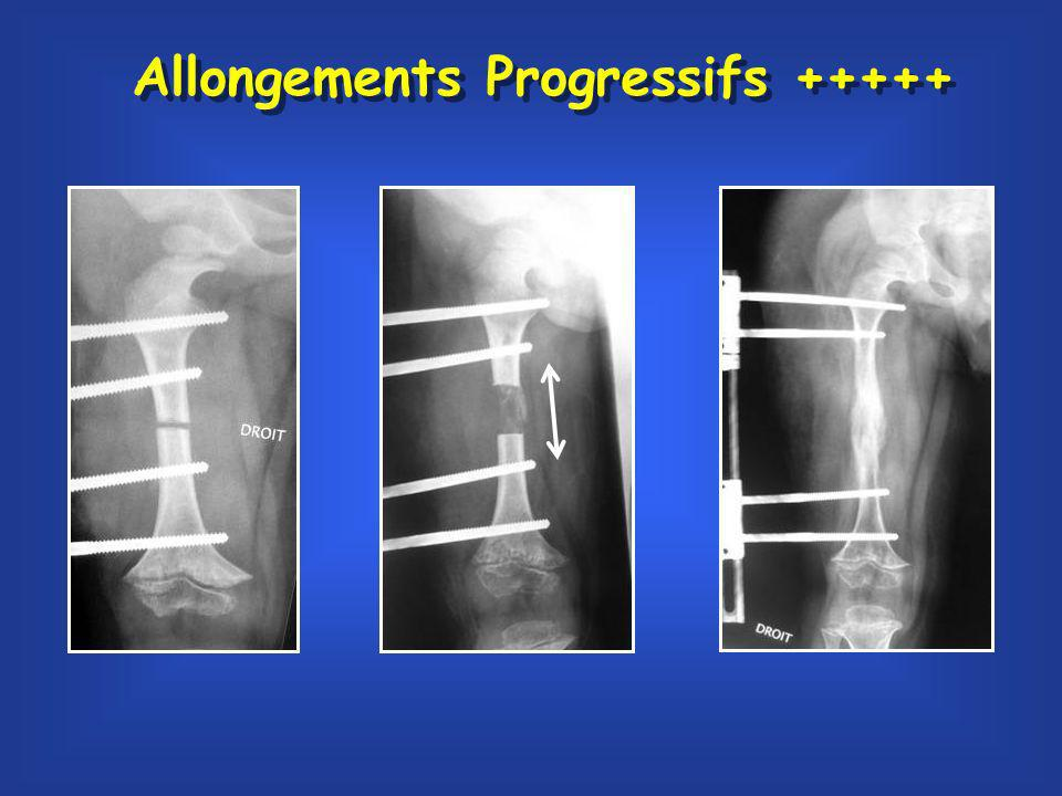 Allongements Progressifs +++++