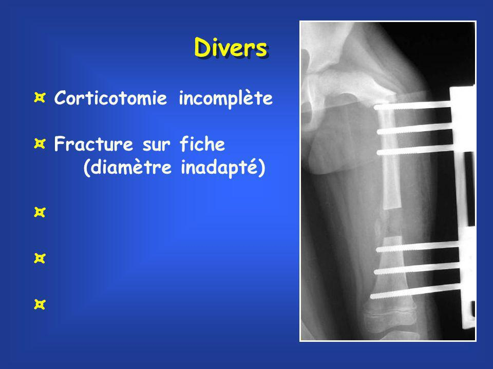 Divers ¤ Corticotomie incomplète ¤ Fracture sur fiche