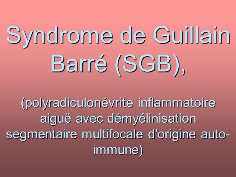 Syndrome de Guillain Barré (SGB), (polyradiculonévrite inflammatoire aiguë avec démyélinisation segmentaire multifocale d origine auto-immune)