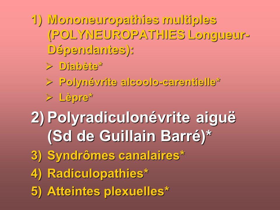 Polyradiculonévrite aiguë (Sd de Guillain Barré)*