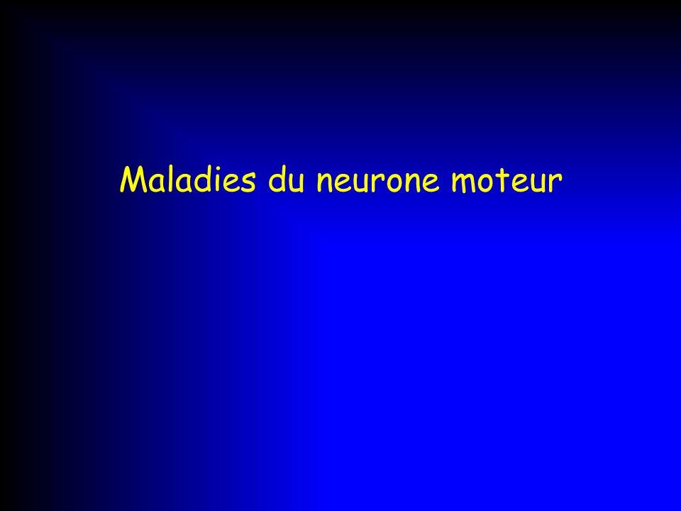 Maladies du neurone moteur
