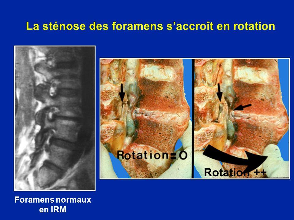 La sténose des foramens s'accroît en rotation
