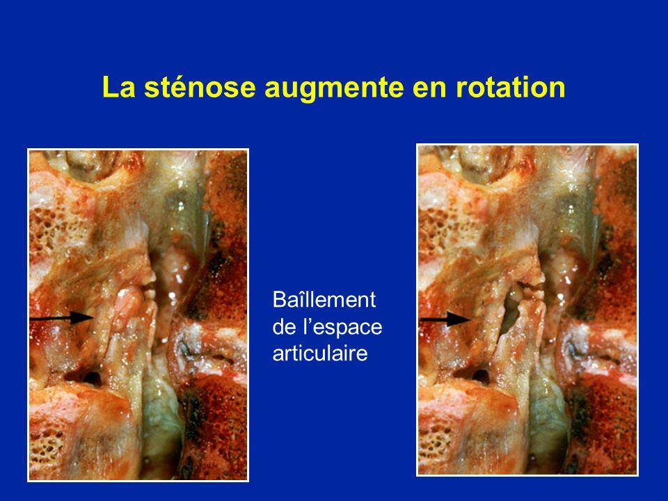 La sténose augmente en rotation