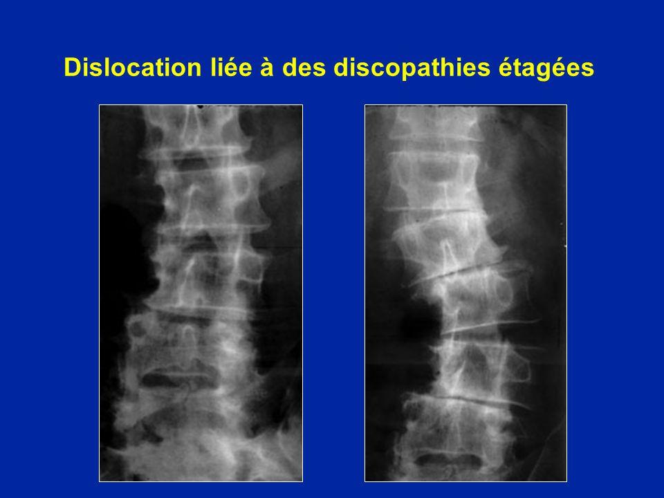 Dislocation liée à des discopathies étagées